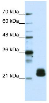 Western blot - TMED4 antibody (ab50634)