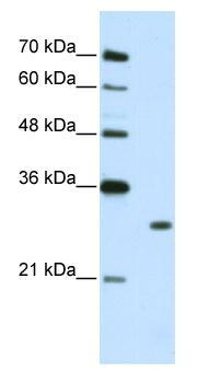 Western blot - Muscleblind-like 1 antibody (ab50635)