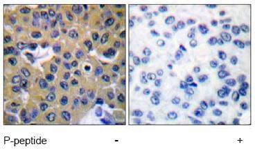 Immunohistochemistry (Paraffin-embedded sections) - SHP2 (phospho Y542) antibody (ab51174)