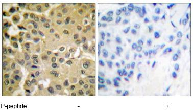Immunohistochemistry (Paraffin-embedded sections) - Smad3 (phospho S425) antibody (ab51177)