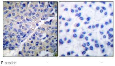 Immunohistochemistry (Paraffin-embedded sections) - Synaptotagmin (phospho S309) antibody (ab51179)