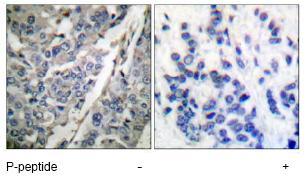 Immunohistochemistry (Paraffin-embedded sections) - Synaptotagmin (phospho T202) antibody (ab51182)