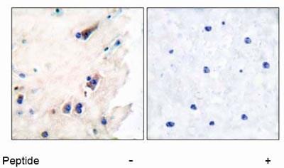 Immunohistochemistry (Paraffin-embedded sections) - Phospholipase C beta 3 antibody (ab52199)
