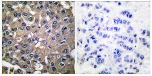 Immunohistochemistry (Paraffin-embedded sections) - MMP9 antibody (ab53018)