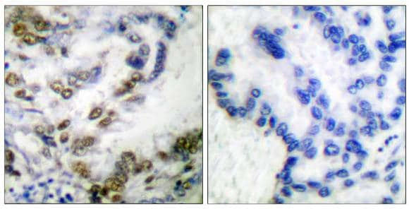 Immunohistochemistry (Paraffin-embedded sections) - ATF2 (phospho T51 + T53) antibody (ab53023)