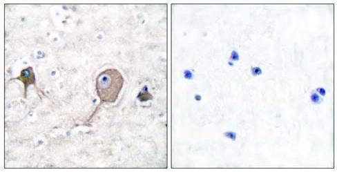 Immunohistochemistry (Paraffin-embedded sections) - NSE antibody (ab53025)