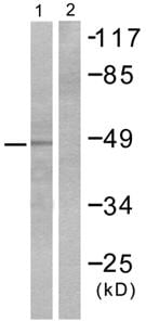 Western blot - NSE antibody (ab53025)