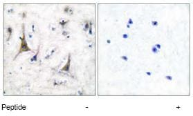 Immunohistochemistry (Paraffin-embedded sections) - PGP9.5 antibody (ab53057)