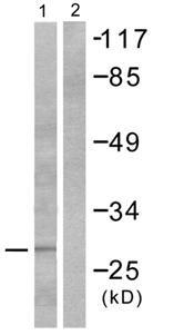 Western blot - Granzyme B antibody (ab53097)