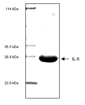SDS-PAGE - IL6 protein (His tag) (ab53327)