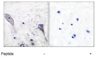 Anti-Patched / PTCH1 antibody (ab53715)