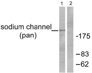 Western blot - Anti-pan Sodium Channel antibody (ab53724)
