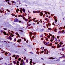 Immunohistochemistry (Formalin/PFA-fixed paraffin-embedded sections) - Hsp90 beta antibody, prediluted (ab54266)