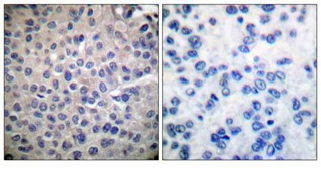 Immunohistochemistry (Paraffin-embedded sections) - STAT4 antibody (ab55357)