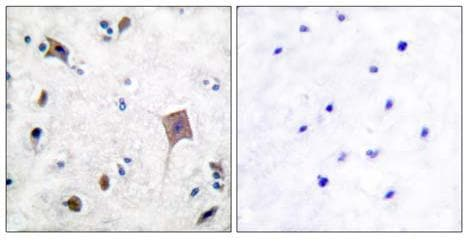 Immunohistochemistry (Paraffin-embedded sections) - PYK2 antibody (ab55358)