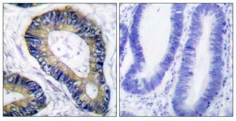 Immunohistochemistry (Paraffin-embedded sections) - eIF4EBP1 antibody (ab55362)