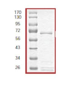 SDS-PAGE - SGK2 protein (Tagged) (ab56283)
