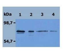 Western blot - PAG protein (His tag) (ab56521)