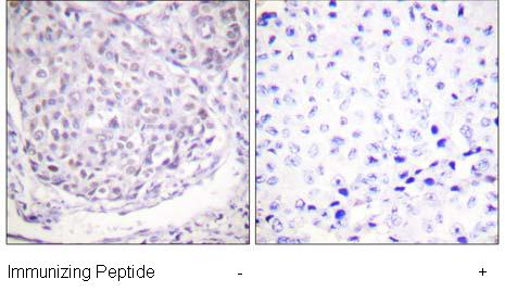 Immunohistochemistry (Paraffin-embedded sections) - Histone H2A (acetyl K5) antibody (ab58548)