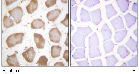 Immunohistochemistry (Paraffin-embedded sections) - 5 Lipoxygenase antibody (ab59341)