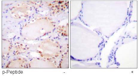 Immunohistochemistry (Paraffin-embedded sections) - BMX (phospho Y566) antibody (ab59409)