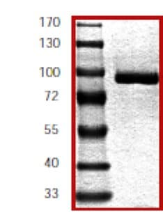SDS-PAGE - Lyn protein (Active) (ab60306)