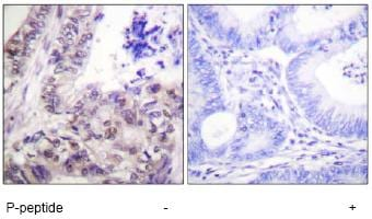 Immunohistochemistry (Formalin/PFA-fixed paraffin-embedded sections) - Anti-Caspase-9 (phospho S144) antibody (ab61004)
