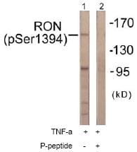 Western blot - RON (phospho S1394) antibody (ab61007)