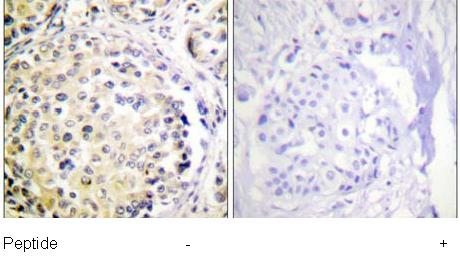 Immunohistochemistry (Formalin/PFA-fixed paraffin-embedded sections) - Vimentin antibody (ab61780)