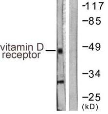 Western blot - Vitamin D Receptor  antibody (ab61781)