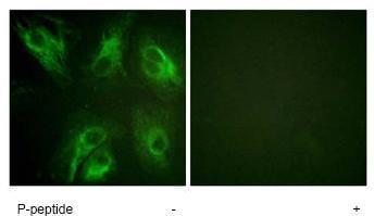 Immunocytochemistry/ Immunofluorescence - CSEN (phospho S63) antibody (ab62439)