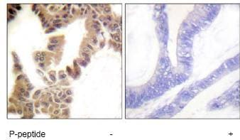 Immunohistochemistry (Formalin/PFA-fixed paraffin-embedded sections) - Anti-Caspase-2 (phospho S157) antibody (ab62441)