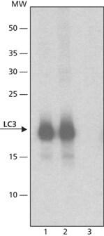 Western blot - Anti-LC3A/B antibody (ab62721)