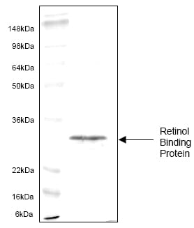 SDS-PAGE - Retinol Binding Protein RBP protein (His tag) (ab62950)