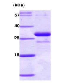 SDS-PAGE - Adiponectin protein (His tag) (ab62957)