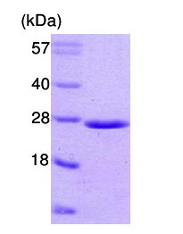 SDS-PAGE - PMP2 protein (ab63107)