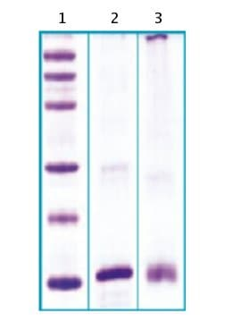 SDS-PAGE - RELM beta protein (His tag) (ab63292)