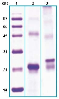 SDS-PAGE - Phospholipase A2 XII protein (His tag) (ab63848)