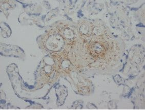 Immunohistochemistry (Formalin/PFA-fixed paraffin-embedded sections) - Anti-ANGPT1 + ANGPT2 antibody (ab65835)