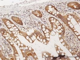 Immunohistochemistry (Formalin/PFA-fixed paraffin-embedded sections) - CC2D1A antibody (ab68302)