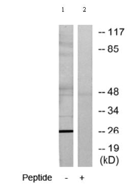 Western blot - ASF1b antibody (ab70126)