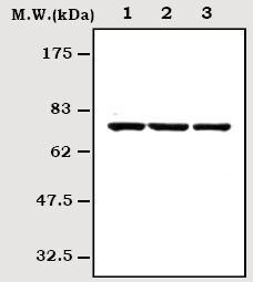 Western blot - BTK antibody [1A1] (ab70587)
