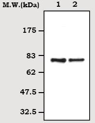 Western blot - Transferrin antibody [3C11] (ab70826)