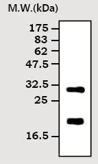 Western blot - hCG beta antibody [7H4] (ab70884)