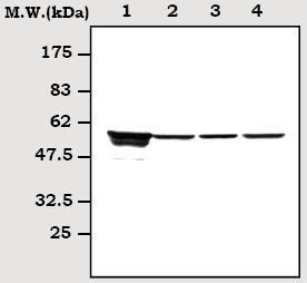 Western blot - Vimentin antibody (ab71144)