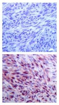 Immunohistochemistry (Formalin/PFA-fixed paraffin-embedded sections) - FMN2 antibody (ab72421)