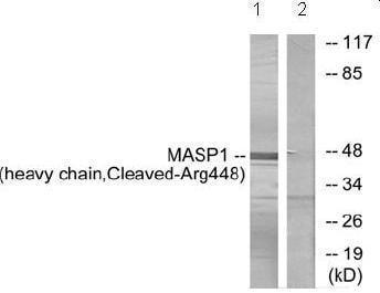Western blot - MASP1 antibody (ab72659)