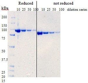- Factor B protein (His tag) (ab73657)