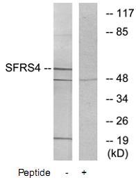 Western blot - SFRS4 antibody (ab73893)