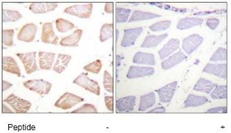 Immunohistochemistry (Formalin/PFA-fixed paraffin-embedded sections) - AKT1 antibody (ab74117)